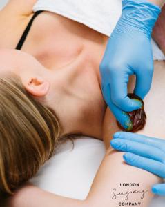 female sugaring underarm